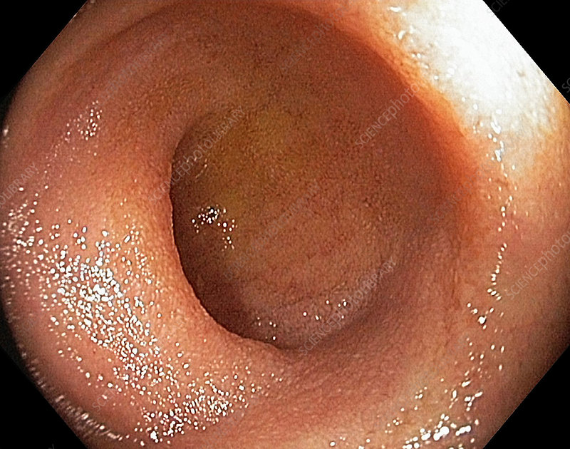normal terminal ileum, endoscopic view - stock image c025/0078, Human Body