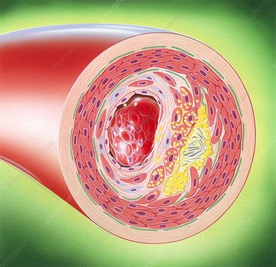 Atherosclerosis, illustration