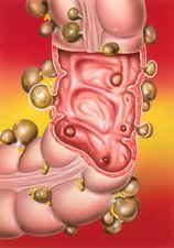 Diverticular disease, illustration