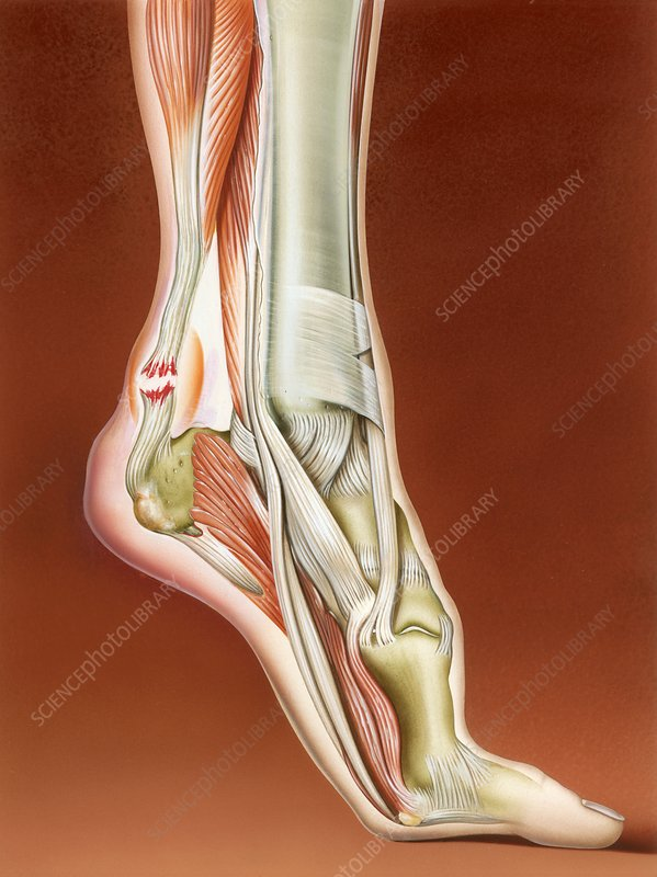 Achilles tendon rupture, illustration