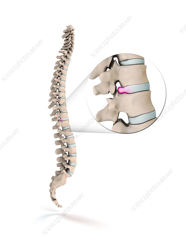 Spinal disc prolapse, illustration