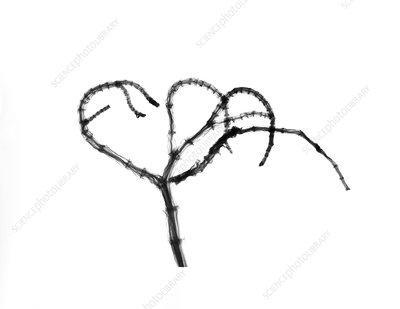 Branching plant stem, X-ray