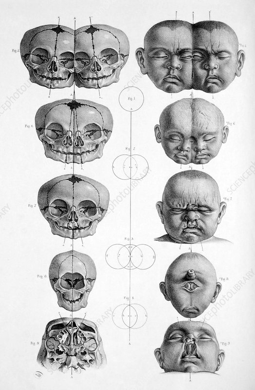Surgical Anatomy, 1856