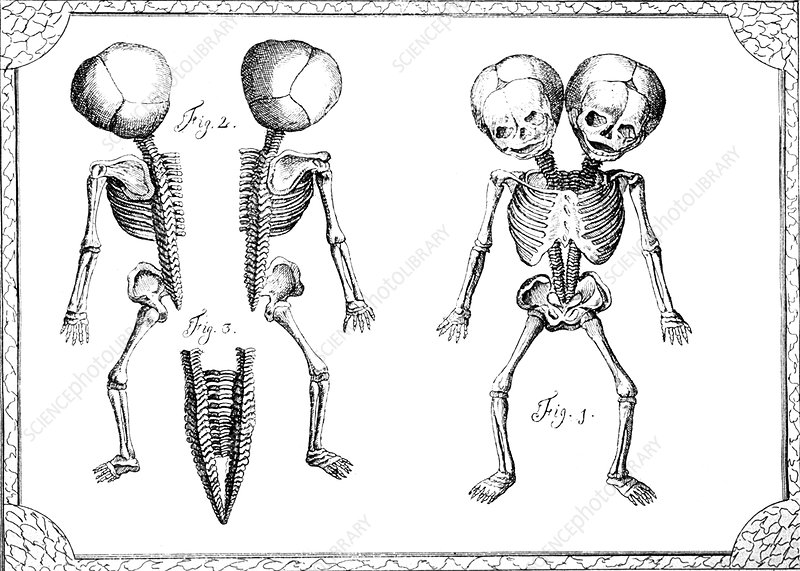 Conjoined Twins, 18th Century