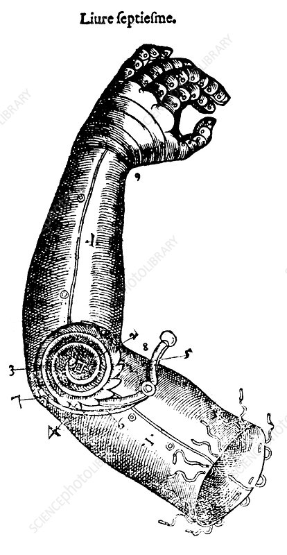 Artificial Arm Designed by Ambroise Pare,