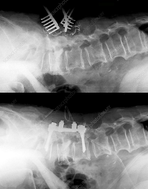 Spinal compression fractures in surgery