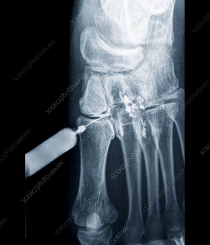 Foot pain being treated, X-ray