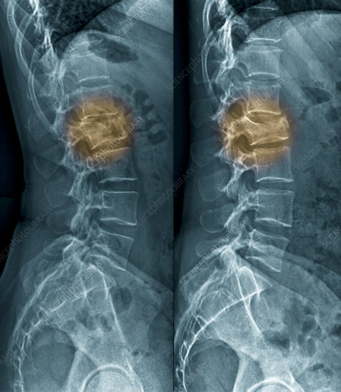 Untreated fractured vertebra, X-ray