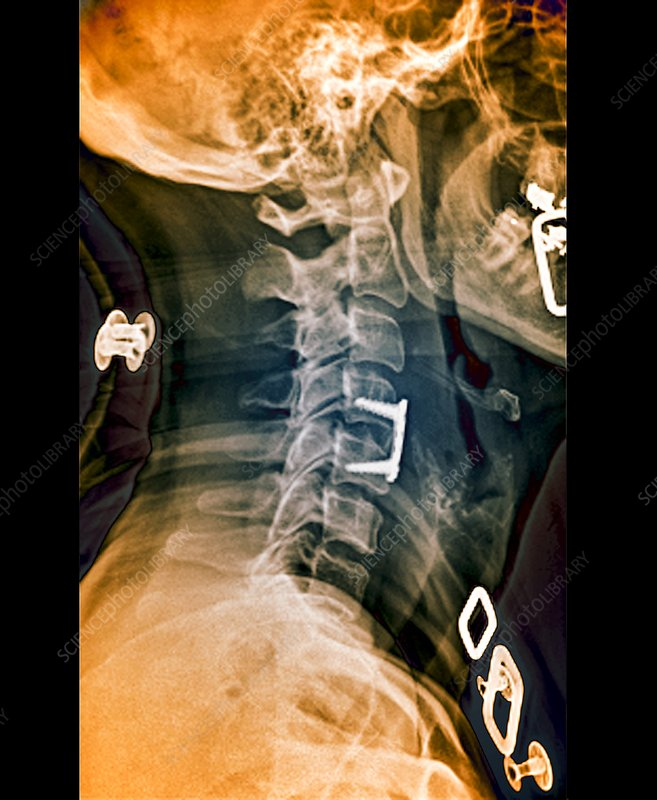 Herniated spinal disc after treatment