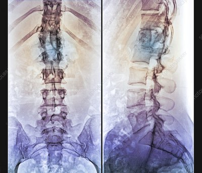 Fixed spinal fracture, X-ray