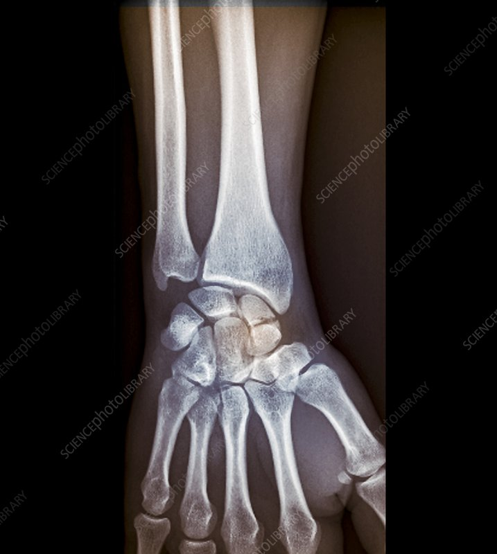 Wrist fracture, X-ray