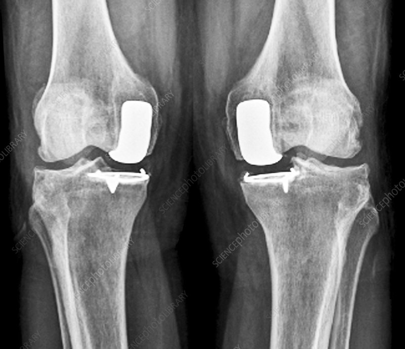Partial knee replacement, X-ray