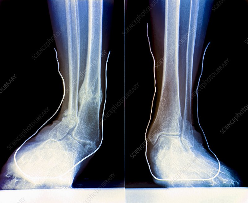 Flat feet with supports, X-ray