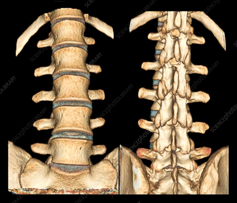 Normal spine, 3D CT scans
