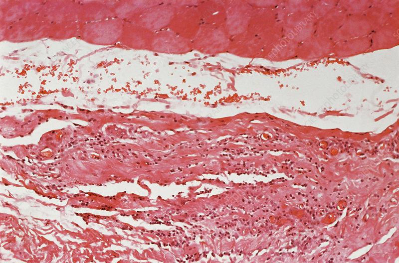 Eosinophilic Fasciitis Lm Stock Image C0252666 Science Photo