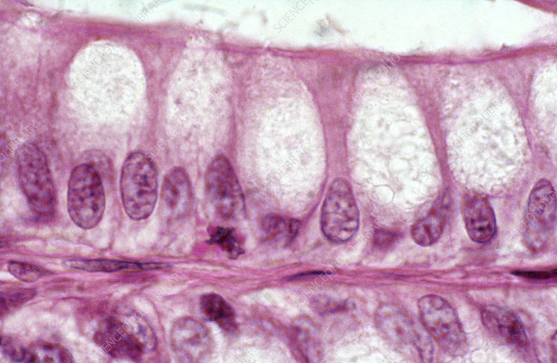 Secretory Epithelium, LM