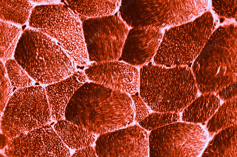 Striated Muscle Fibers, LM