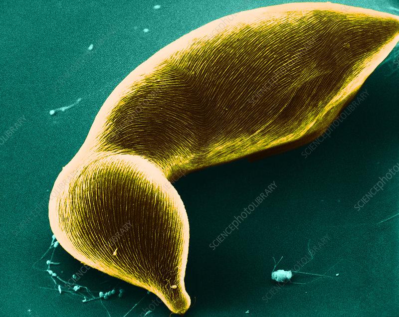Amoeboid Protozoan, SEM