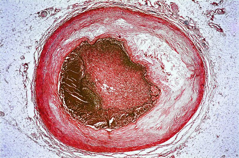 Thrombosis & Atheroma, LM