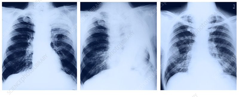 Lung Cancer, Pre- and Post-Op