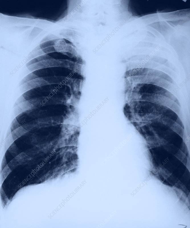 Lung Cancer, Pre-Op (1 3)