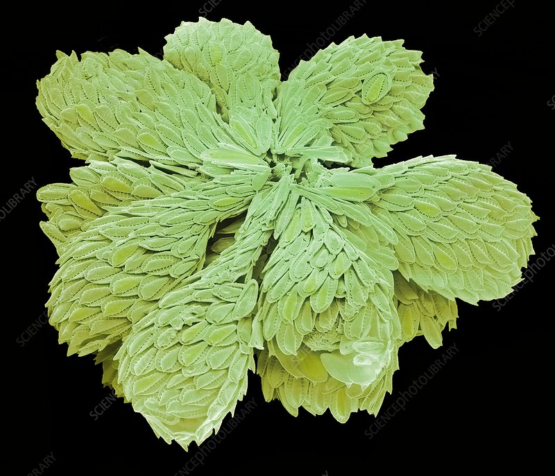 Synura golden-brown alga., SEM