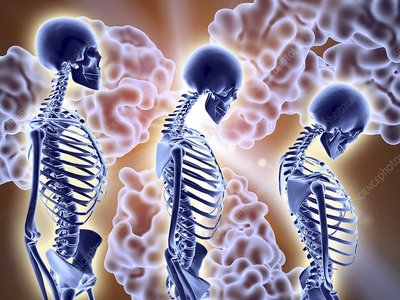 Osteoporosis treatment with antibodies