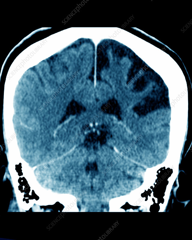Cerebral atrophy, CT scan