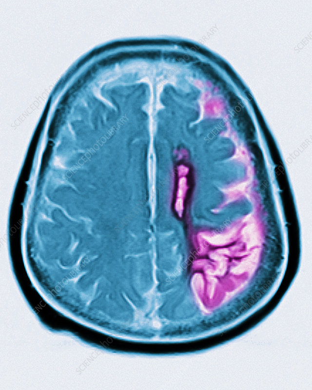 Cerebral atrophy, mri