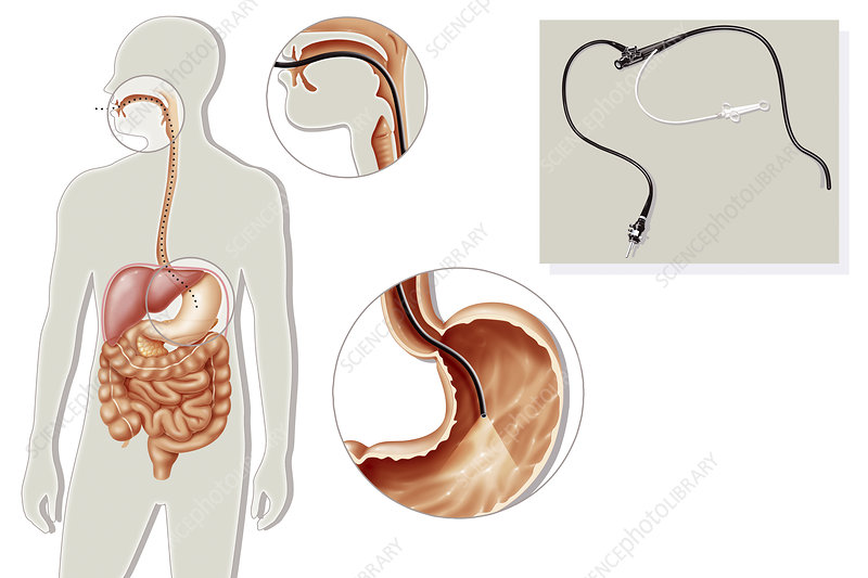 Gastroscopy, illustration