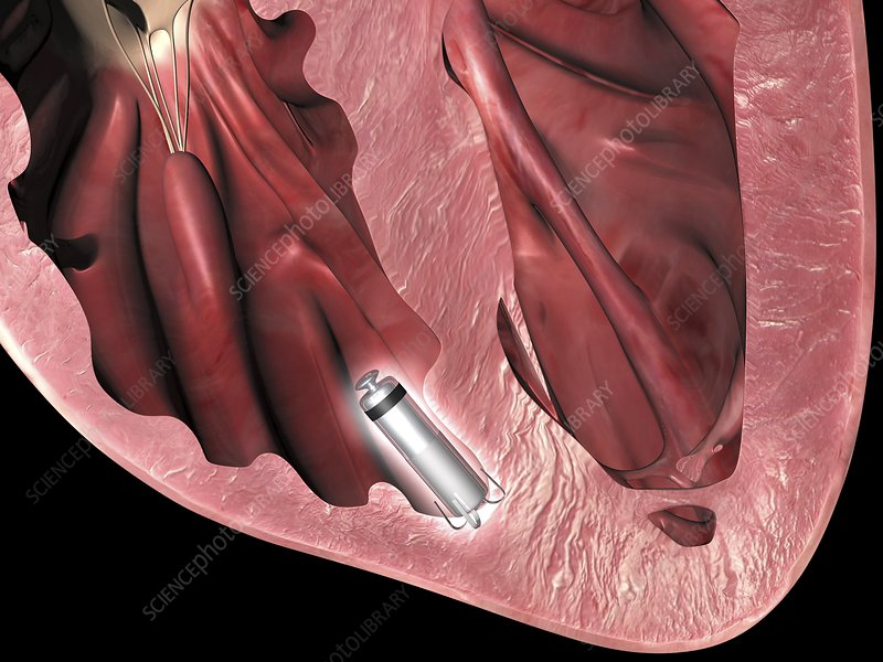 Leadless pacemaker in anterior heart
