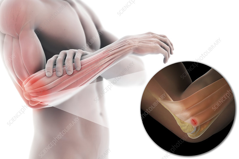 Tennis Elbow, illustration