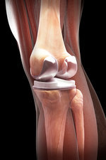 Knee Replacement, illustration