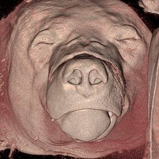 Bear's head, CT scan