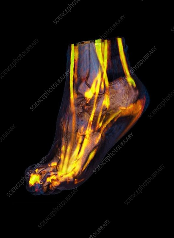 Human foot, CT scan