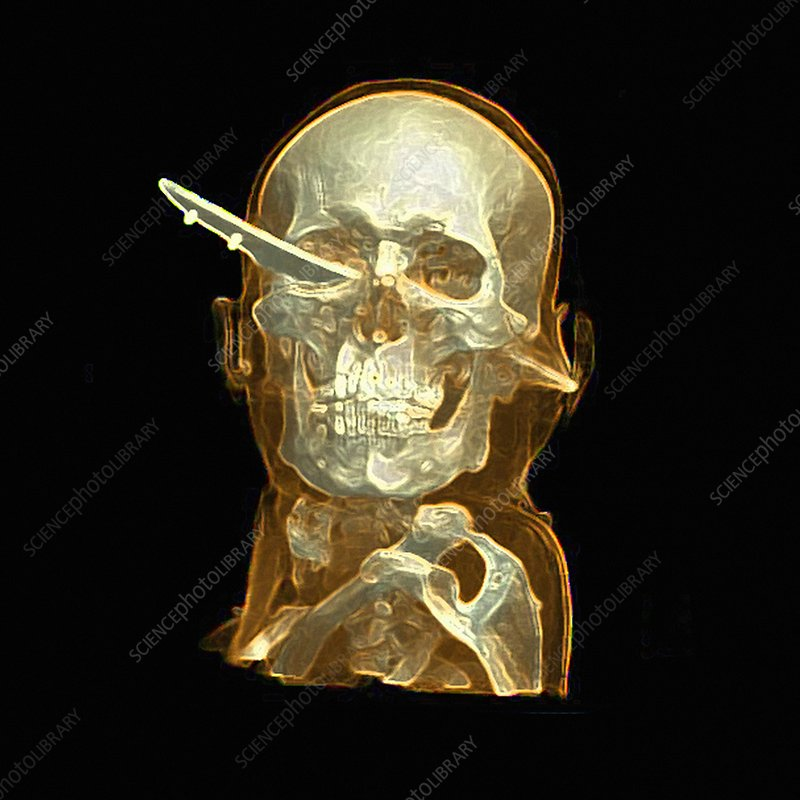 Knife skull injury, CT scan