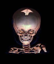 Human baby's skull, CT scan