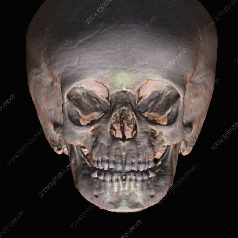 Human baby's skull, CT scan