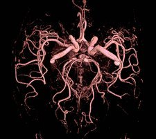 Brain arteries, MRI angiography