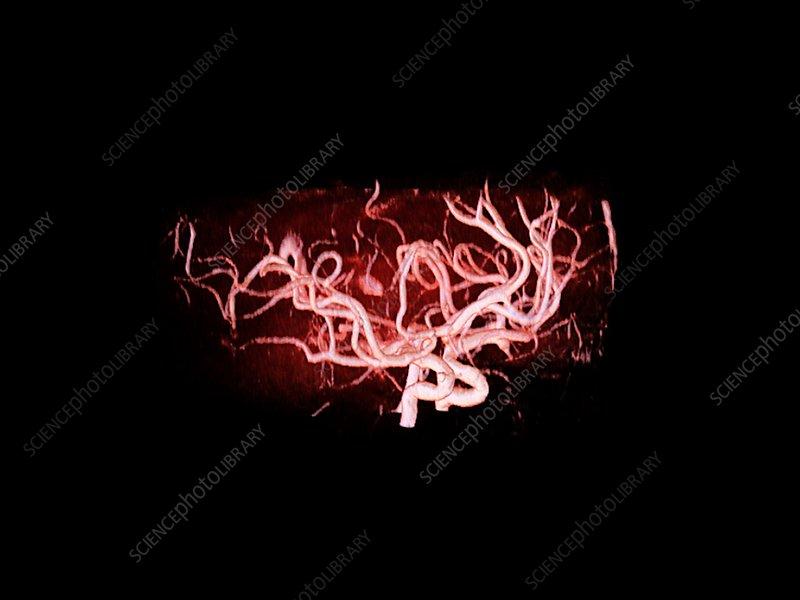 Brain arteries, MRI angiography