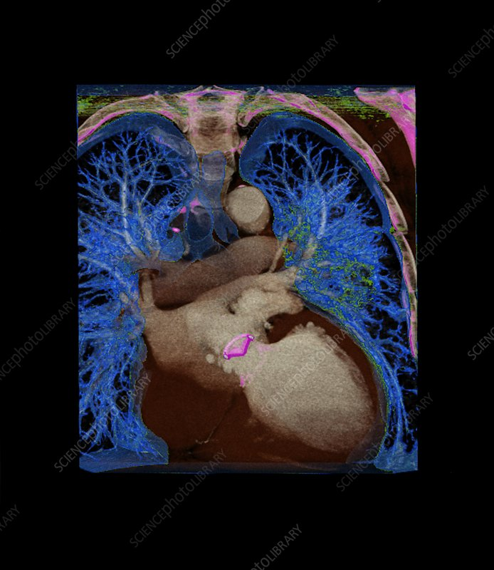 Coronary artery bypass graft, CT scan