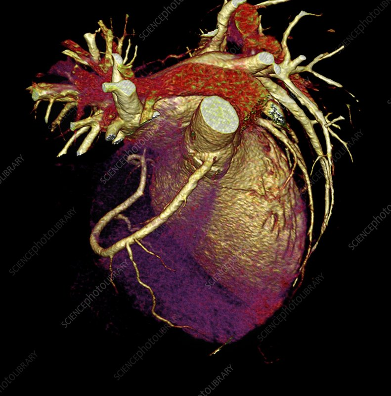 Human heart, CT scan