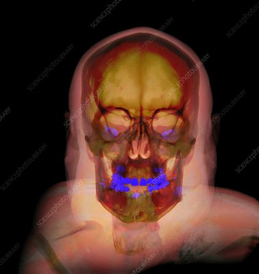 Human head and skull, CT scan