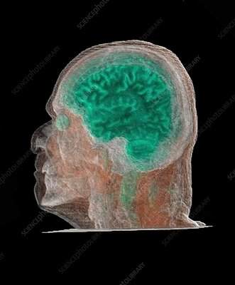 Human head and brain, CT scan