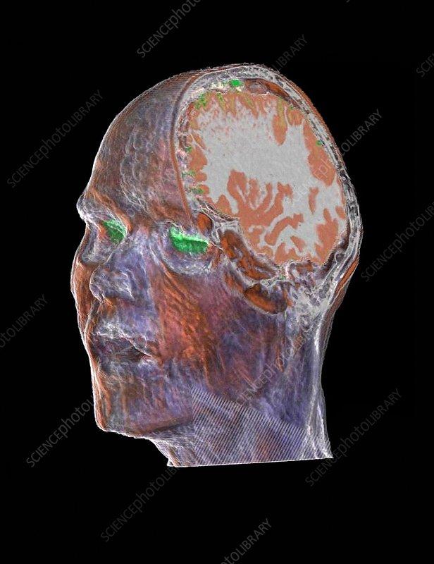Human head and brain, CT scan