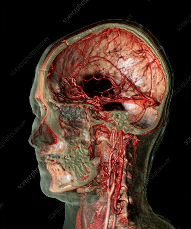 Skull and brain blood vessels, CT scan