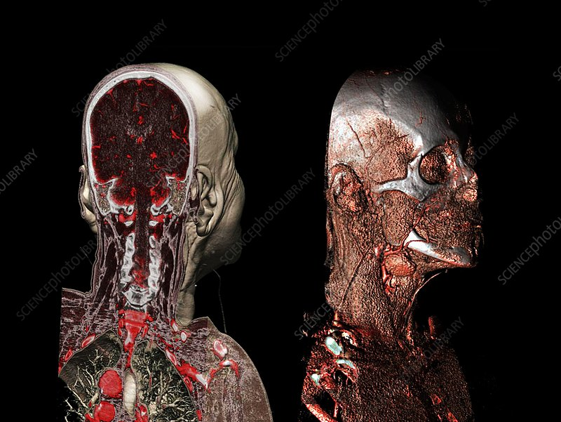 Skull, brain and blood vessels, CT scans