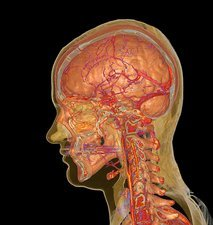 Brain, spine and blood vessels, CT scan