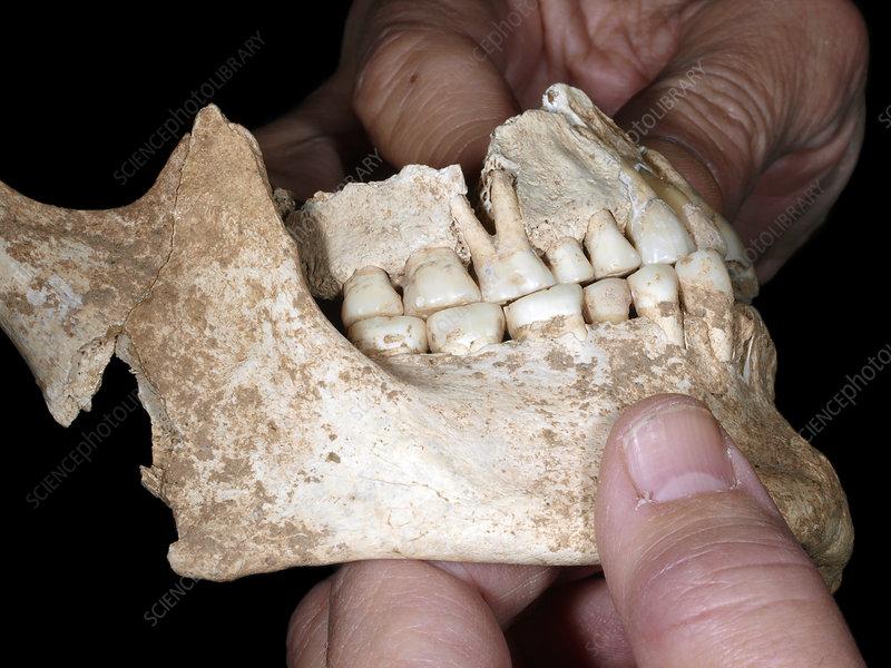 King Philip II of Macedon's jaw bones