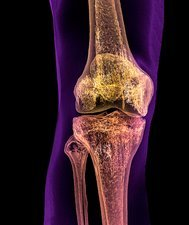 Normal adult knee, CT scan